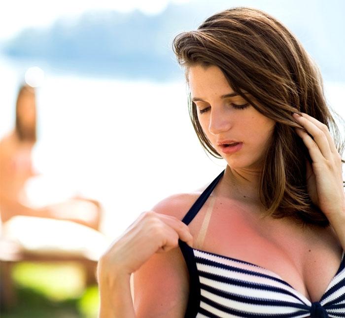 sunburn not tan